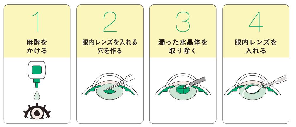 眼の病気と治療白内障