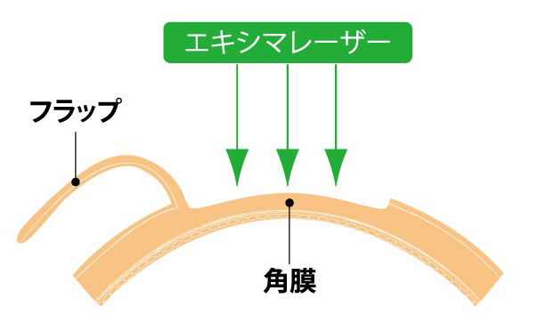 広島 レーシック